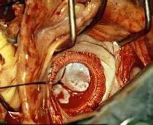 Consolidada cirugía cardiovascular en Villa Clara